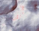 donna salute ginecologia