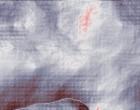ginecologia polipo endometrio