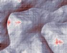 ginecologia papilloma