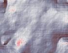 ginecologia polipo