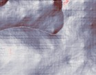 roma ginecologia